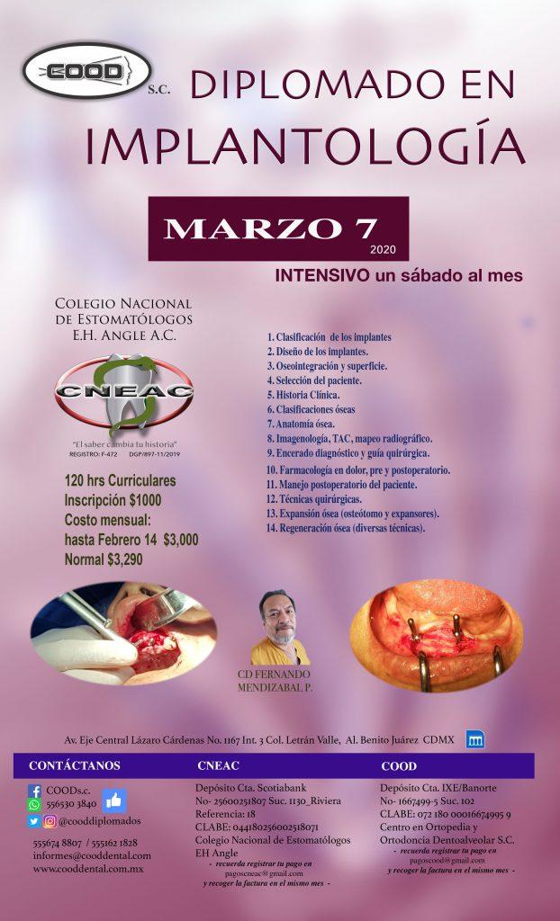 IMPLANTO MARZO 7